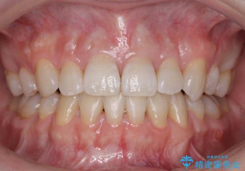 ハーフリンガル 犬歯のねじれ 歯根の外部吸収している歯を抜歯の症例 治療後