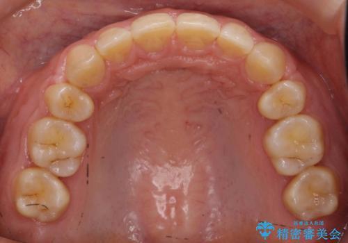 前歯のすきま 右上の小臼歯の垂直的骨吸収を抜歯で解決の治療後