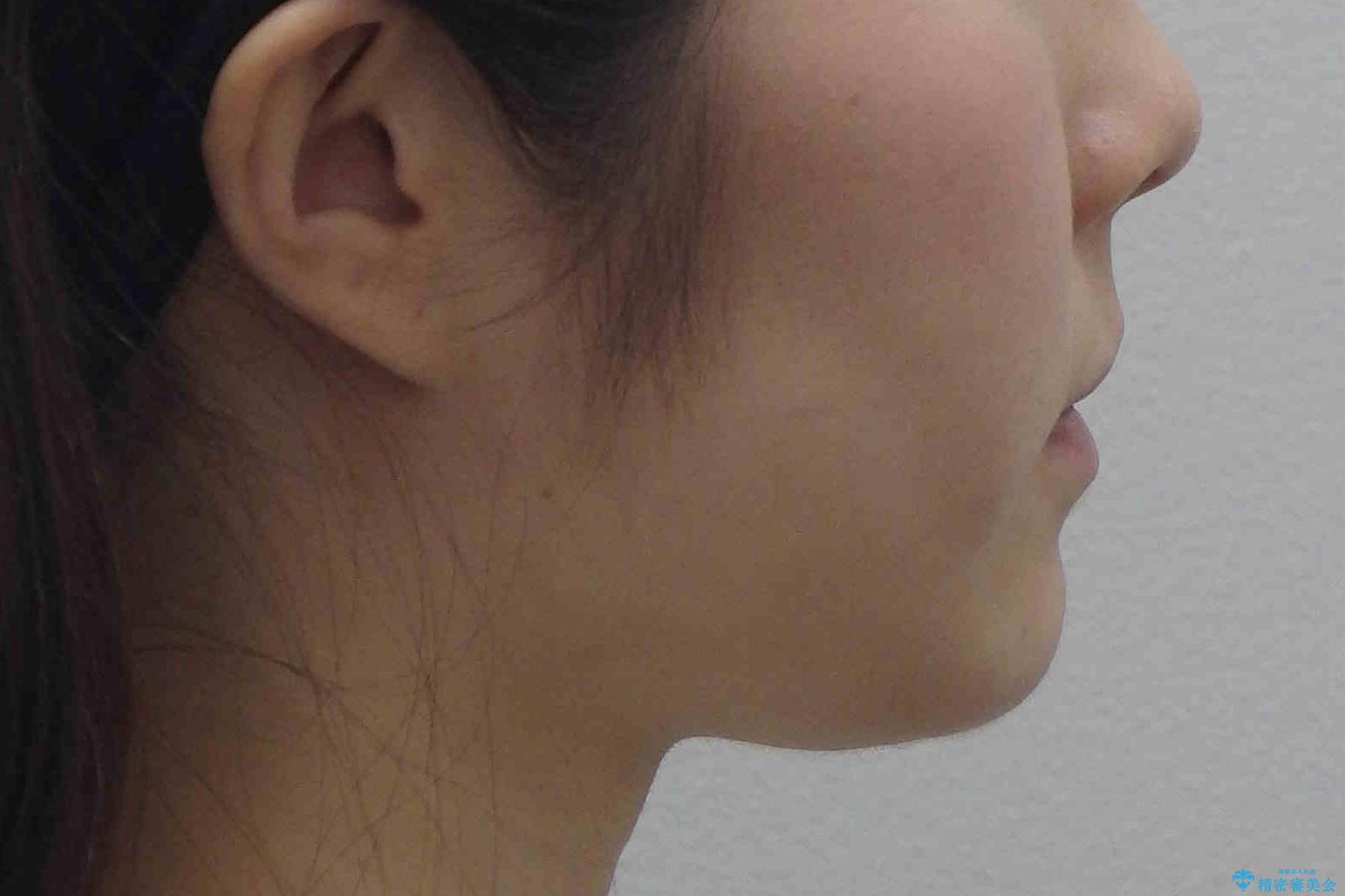 ハーフリンガル 犬歯のねじれ 歯根の外部吸収している歯を抜歯の治療前(顔貌)