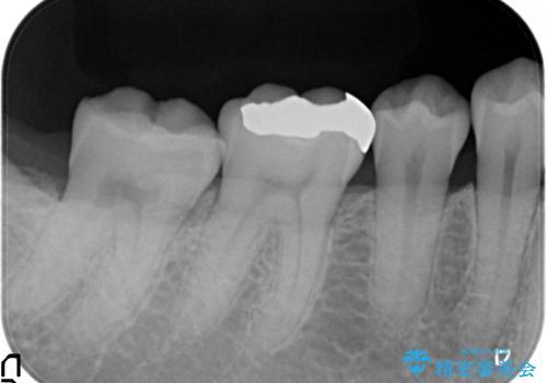 セラミックインレー 銀歯を白くの治療前