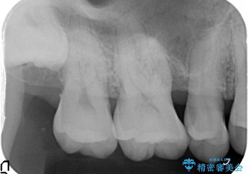 [歯周病治療] 再生療法 歯肉弁根尖側移動術の治療前