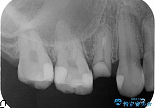 オールセラミッククラウン 根管治療 奥歯の補綴の治療前