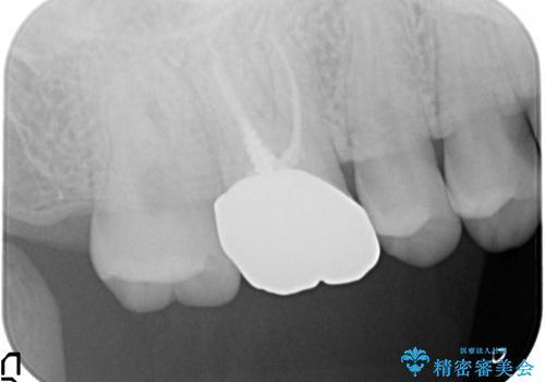 メタルボンドクラウン ゴールドから白い歯への治療前
