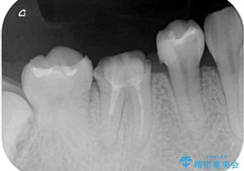 治療の度に痛んだ歯 セラミッククラウンによる補綴治療の治療前