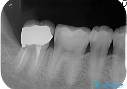奥歯に違和感がある 30代男性の治療後