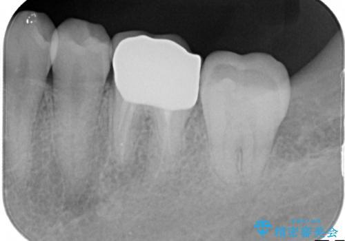 銀歯を白くしたい セラミッククラウンの治療後