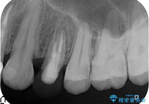 オールセラミッククラウン 歯牙の挺出後の補綴の治療中