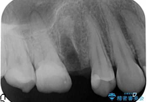[深い虫歯] 根管治療・歯周外科治療を行い歯を保存するの治療前