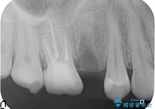 [深い虫歯] 根管治療・歯周外科治療を行い歯を保存するの治療後