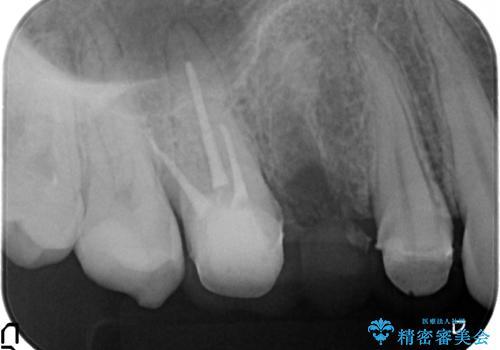 [深い虫歯] 根管治療・歯周外科治療を行い歯を保存するの治療中