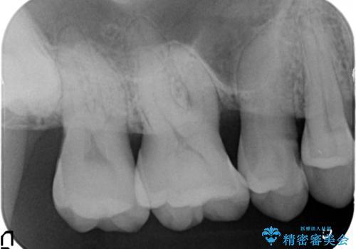 [歯周病治療] 再生療法 歯肉弁根尖側移動術の治療後