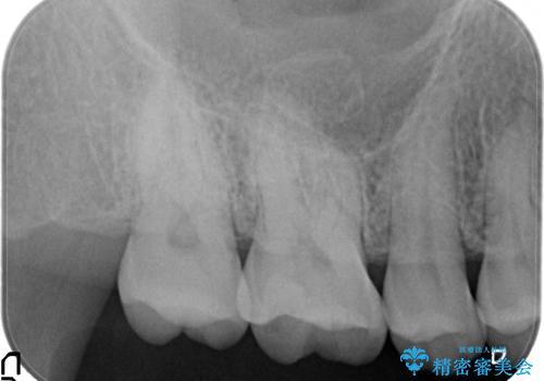 セラミックインレー 古い銀歯のやり替えの治療後