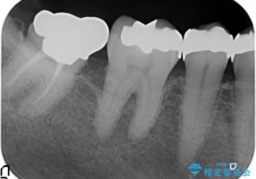 [大臼歯分岐部病変] ブリッジによる咬合機能回復の治療前
