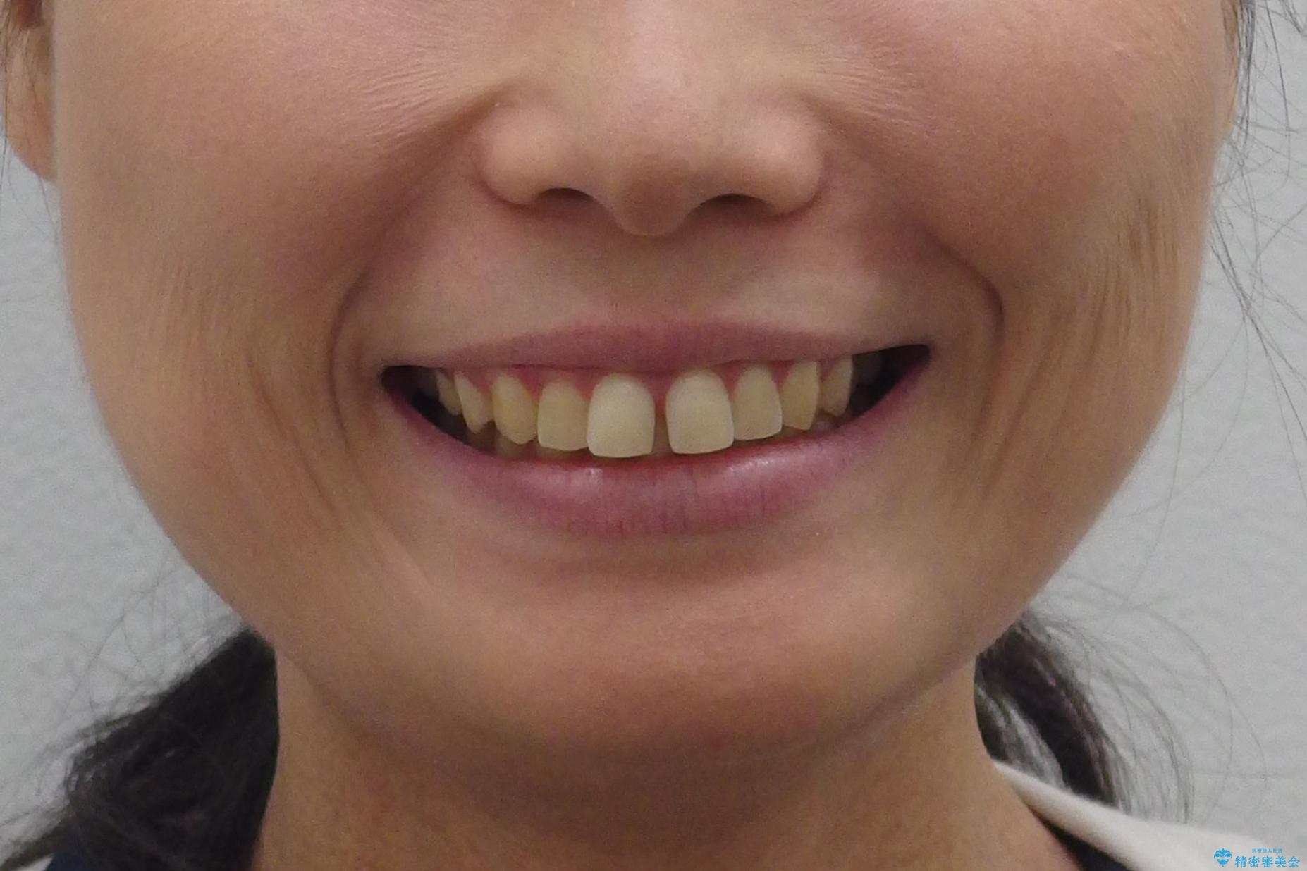 前歯のすきま 右上の小臼歯の垂直的骨吸収を抜歯で解決の治療前(顔貌)