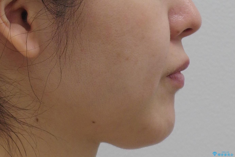 前歯で引っ込んでいる歯がある 他院で矯正200万と言われたの治療前(顔貌)