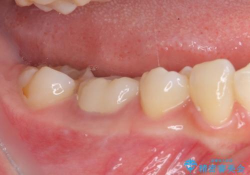 治療の度に痛んだ歯 セラミッククラウンによる補綴治療の治療後