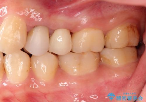 歯肉の中までの深い虫歯 部分矯正後のセラミック治療の症例 治療後