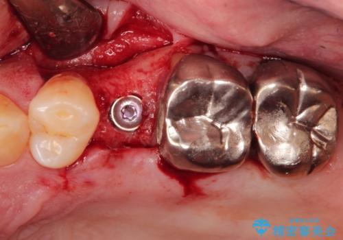 小臼歯部のインプラントの治療中