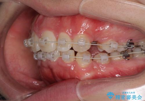 がたがたと出っ歯を直したい ワイヤーによる抜歯矯正の治療中