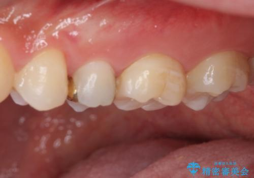 他院で治療中の歯 ゴールドインレーによる修復治療の治療後