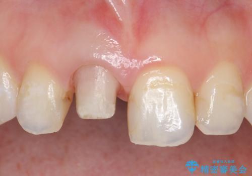 オールセラミッククラウン(スペシャル) 変色が気になる前歯部の補綴の治療中