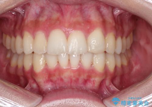 前歯のガタガタを目立たない装置でなおしたい インビザラインによる目立たない矯正の症例 治療後