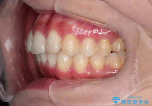 前歯のガタガタを目立たない装置でなおしたい インビザラインによる目立たない矯正の治療後