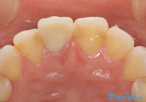 オールセラミッククラウン(スペシャル) 変色が気になる前歯部の補綴の治療後