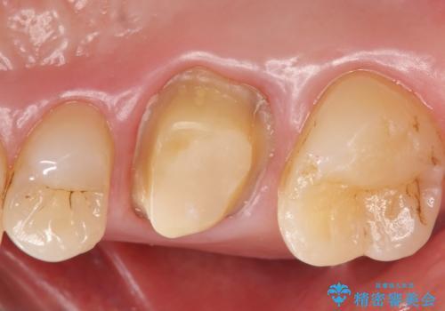 メタルボンドクラウン ゴールドから白い歯への治療中