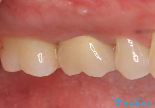 メタルボンドクラウン ゴールドから白い歯への治療後