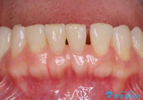 飛行機を利用しての通院 気になる所を全て治療する総合歯科治療の治療前