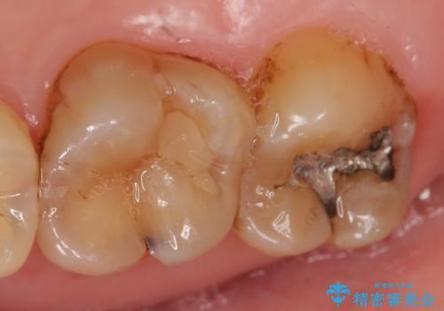 セラミックインレー 古い銀歯のやり替えの治療前