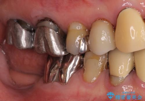 小臼歯の審美治療 ストローマンインプラントとカスタムアバットメントの治療前