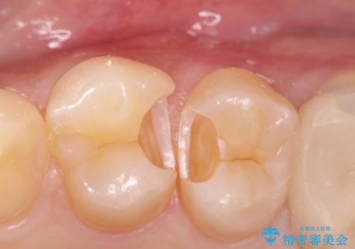 精密なむし歯の治療 セラミックインレーの治療後