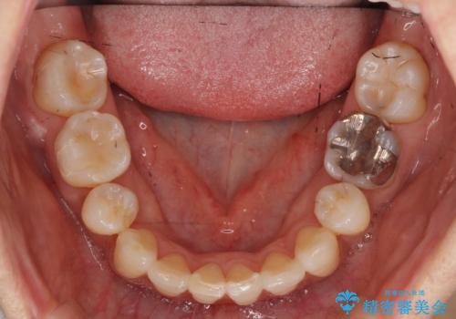 前歯で引っ込んでいる歯がある 他院で矯正200万と言われたの治療後
