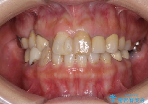 セラミックと矯正を併用してきれいな前歯への症例 治療前