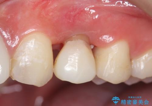 オールセラミッククラウン 歯牙の挺出後の補綴の治療前