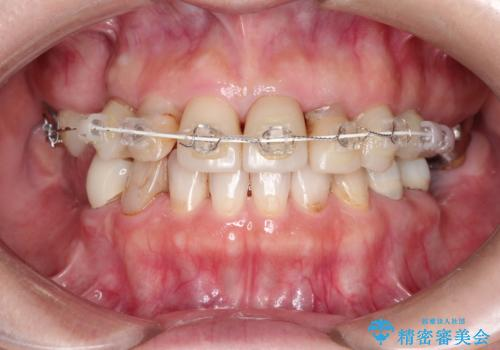 セラミックと矯正を併用してきれいな前歯への治療中
