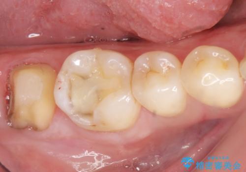 奥歯に違和感がある 30代男性の治療中