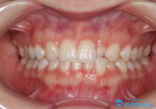 海外転居前に気になる前歯を整えたい 上下前歯の部分矯正の症例 治療前