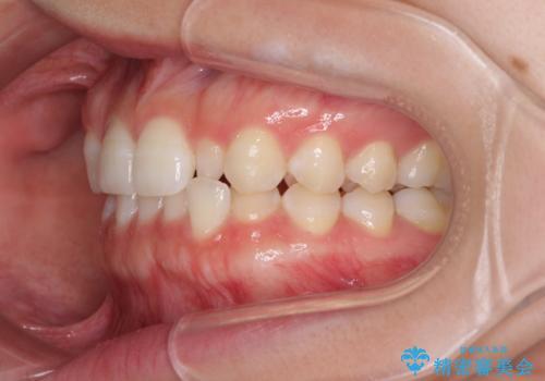 海外転居前に気になる前歯を整えたい 上下前歯の部分矯正の治療前