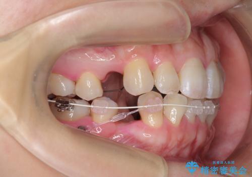 ハーフリンガル 犬歯のねじれ 歯根の外部吸収している歯を抜歯の治療中
