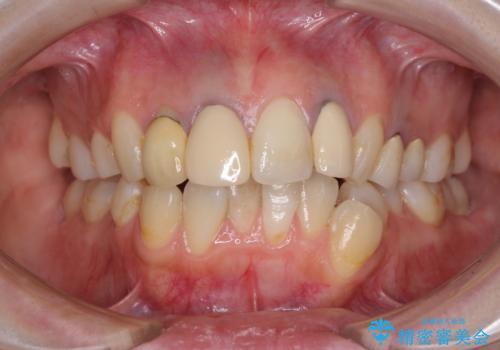 金属で変色した前歯を綺麗にしたい オールセラミッククラウンによる前歯の治療の治療前
