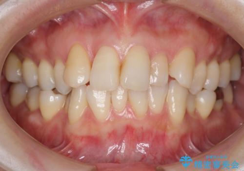 前歯で引っ込んでいる歯がある 他院で矯正200万と言われたの治療前