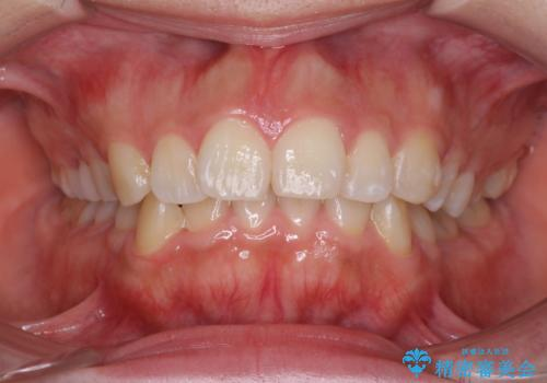 がたがたと出っ歯を直したい ワイヤーによる抜歯矯正の症例 治療前