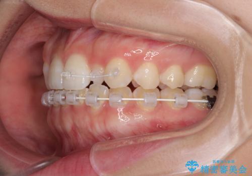 海外転居前に気になる前歯を整えたい 上下前歯の部分矯正の治療中