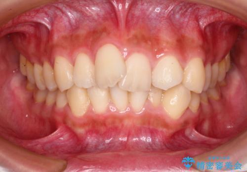 前歯のガタガタを目立たない装置でなおしたい インビザラインによる目立たない矯正の症例 治療前