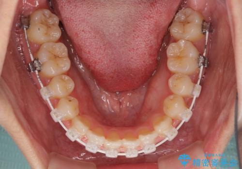 前歯の反対咬合 非抜歯のワイヤー矯正の治療中