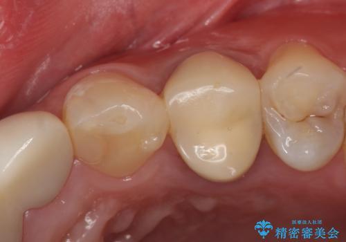 オールセラミッククラウン 歯牙の挺出後の補綴の症例 治療前