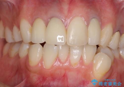 金属で変色した前歯を綺麗にしたい オールセラミッククラウンによる前歯の治療の治療後